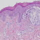 Melanoma BRAF mutado